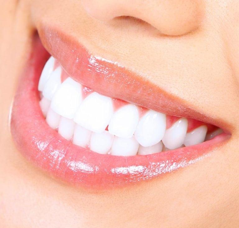 Teeth Whitening Dentist Anaheim Cosmetic Whitening Specialist